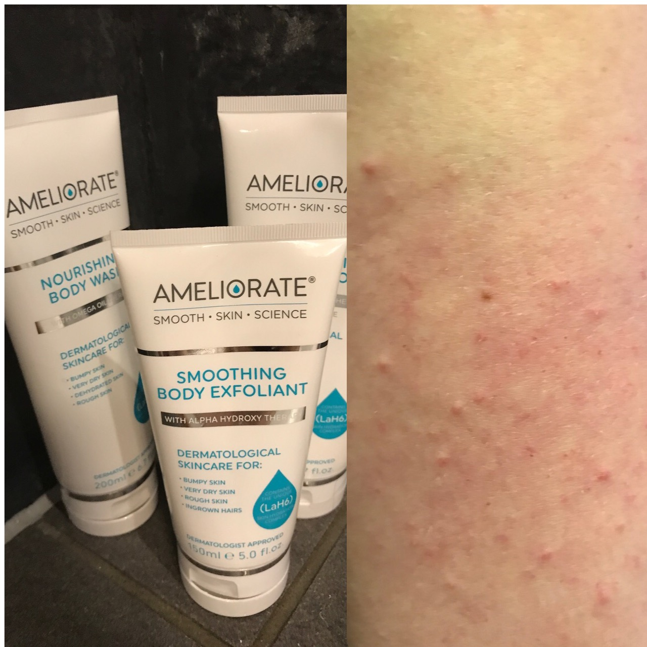 Keratosis Pilaris – Explained
